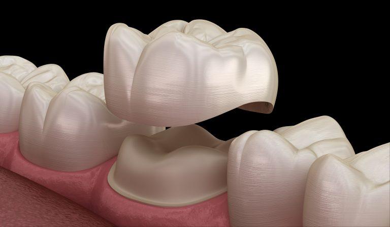porcelain dental crowns dedham ma