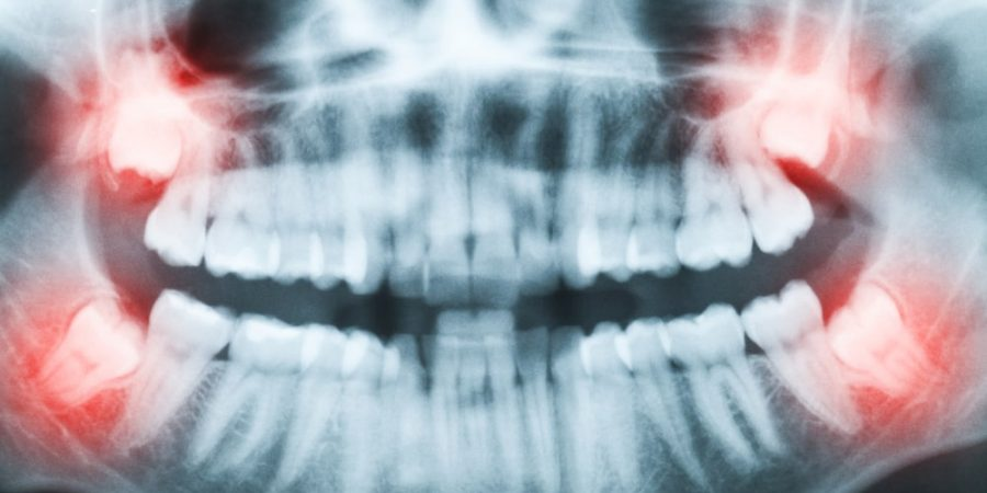 dental x-ray | oral surgery